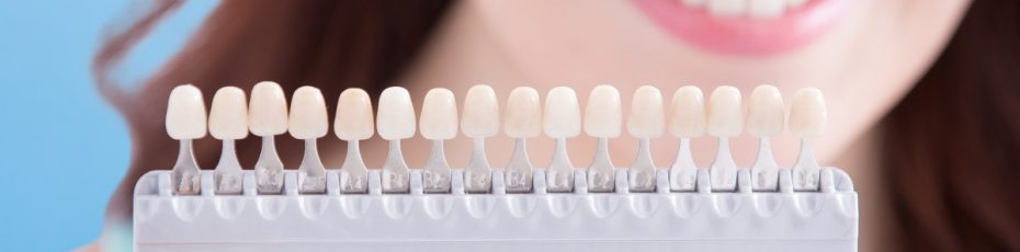 5 facts to know while choosing veneers