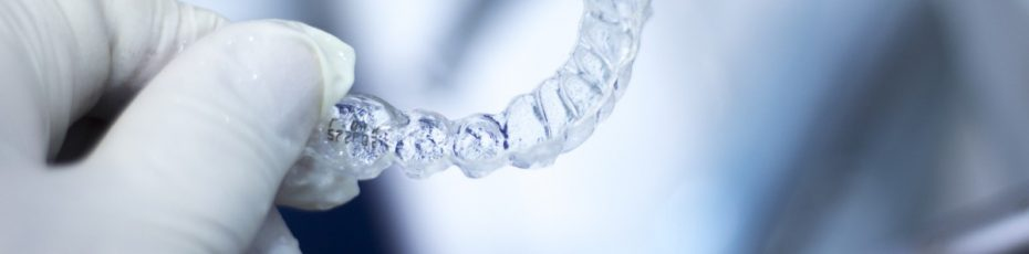 what you need to know about invisalign